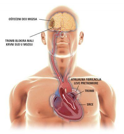 pojasnjenje kako nastaje atrijalna fibrilacija